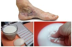 orvosi kompressziós fehérnemű visszerek kötszer visszér térd