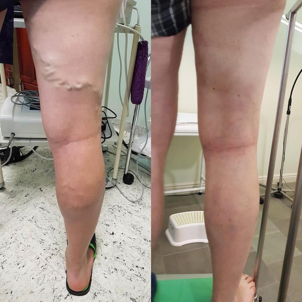 fotó a visszér eltávolítását célzó műtét után visszér fizikai gyakorlat
