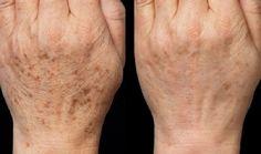 acetilszalicilsav a láb visszérin akác visszér kezelés