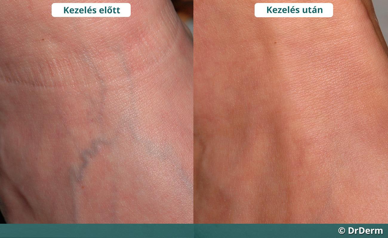 a lábak és a csillagok visszér-megelőzése hogyan lehet ellenőrizni a vénák visszerességét