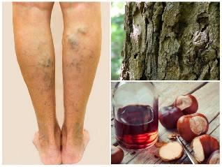 visszerek kezelése a lábakon gesztenyével