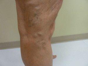 Lábfekélyek visszérrel, A lábszárfekély veszélyei
