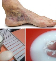 visszér kezelése gyógyhatású visszér és endoprotetika