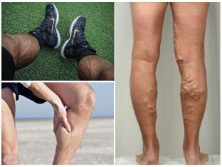 férfiaknál az egyik lábán visszerek