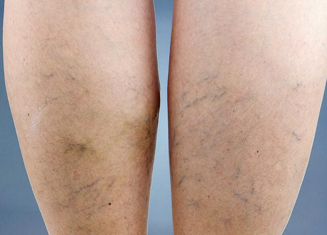 10 tipp a visszér otthoni kezelésére - Napidoktor, A lábakat ecettel dörzsölve visszeres