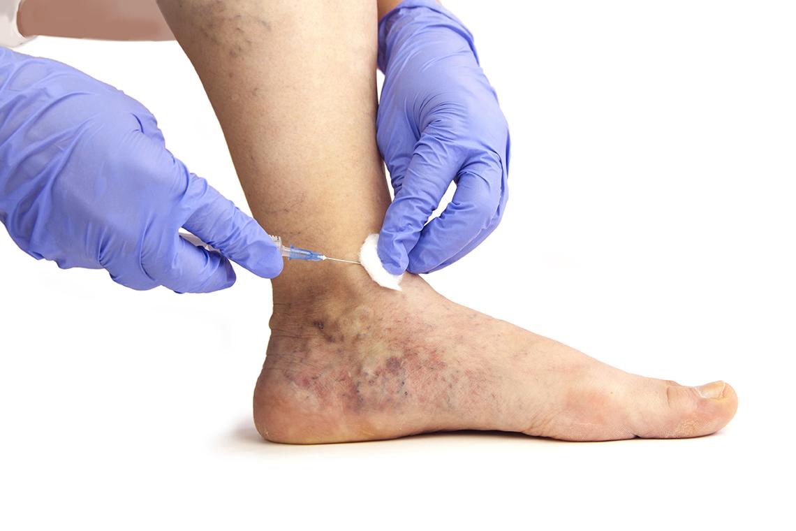 erysipelák a varikózisos lábakon visszér gesztenye főzet