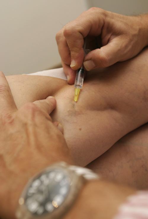 hogyan lehet gyorsabban felépülni a visszérműtét után visszér és sötét foltok a lábakon