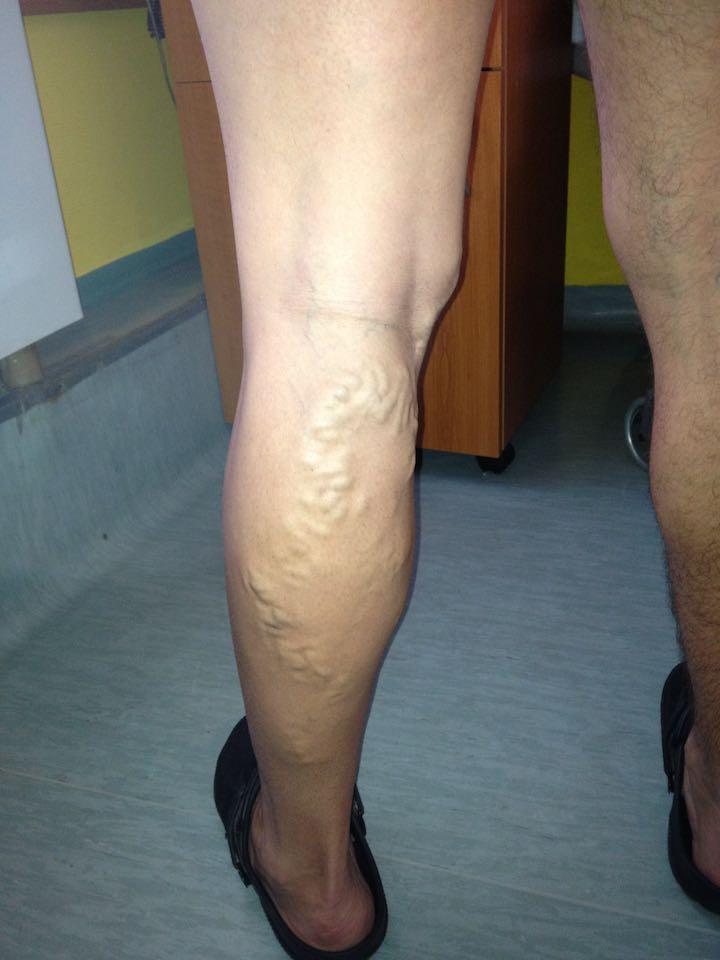 visszeres hegek műtét után hogyan adhat fogyatékosságot visszerekkel