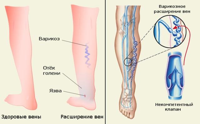 retikuláris varikózis jelei könnyű a lábakban a visszér gyakorlása