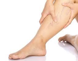 dénás készülék visszér ellen visszérkezelő lábak
