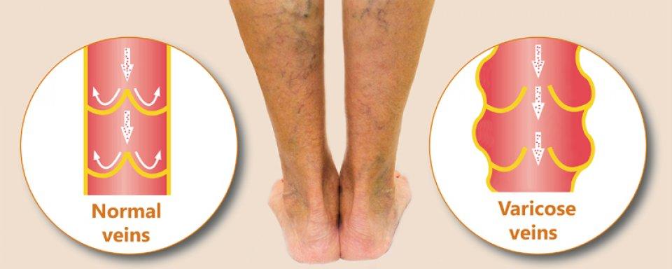 az alsó végtagok visszeres kórtörténete belső láb visszér