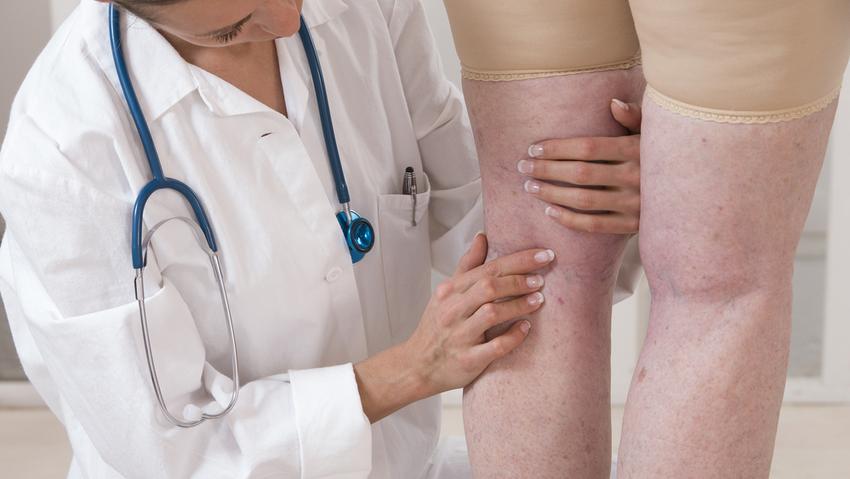 visszér új kezelési módszerek sungit krém visszér ellen