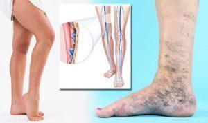 olcsó orvosság visszér vélemények illóolajokkal történő kezelés a visszeres lábakon