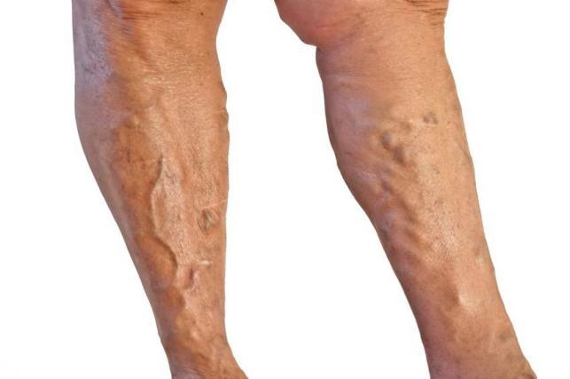 forró lábak visszér