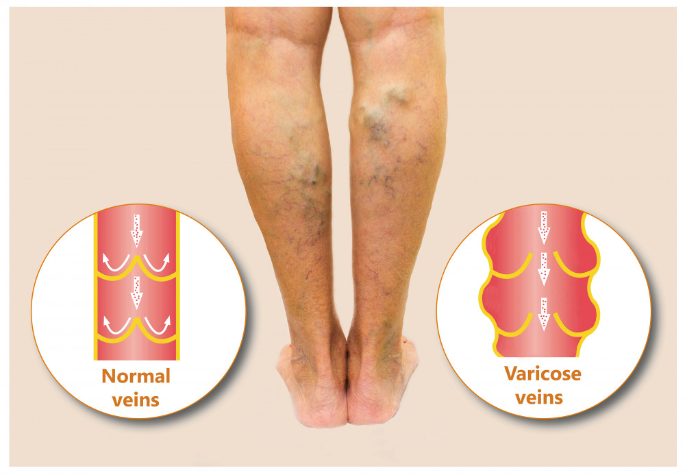 visszér, miért súlyos fájdalom a lábon visszérhasználati utasítások