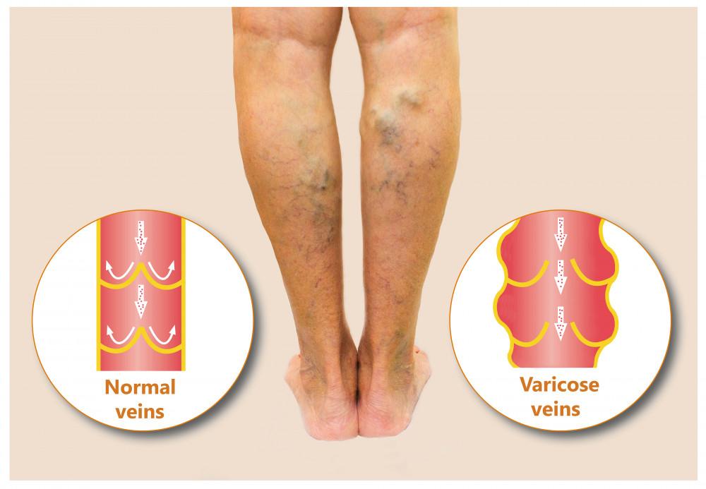 Dimotec - Visszeres láb