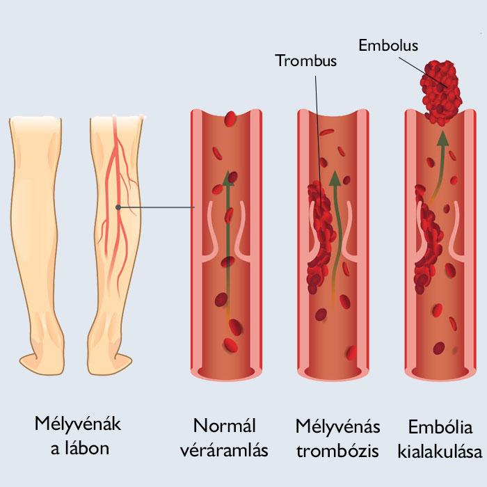 alternatív gyógyászat visszerek kezelésére áruk visszeres lábak számára