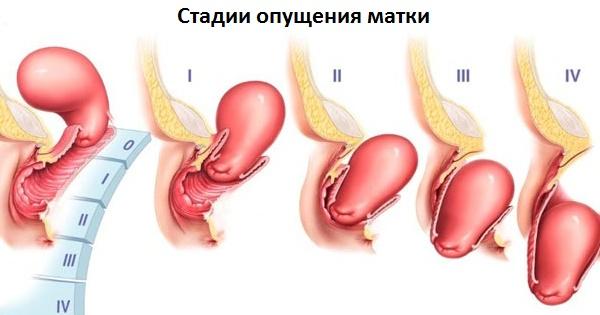 a kismedencei szervek varikózisai a szülés után