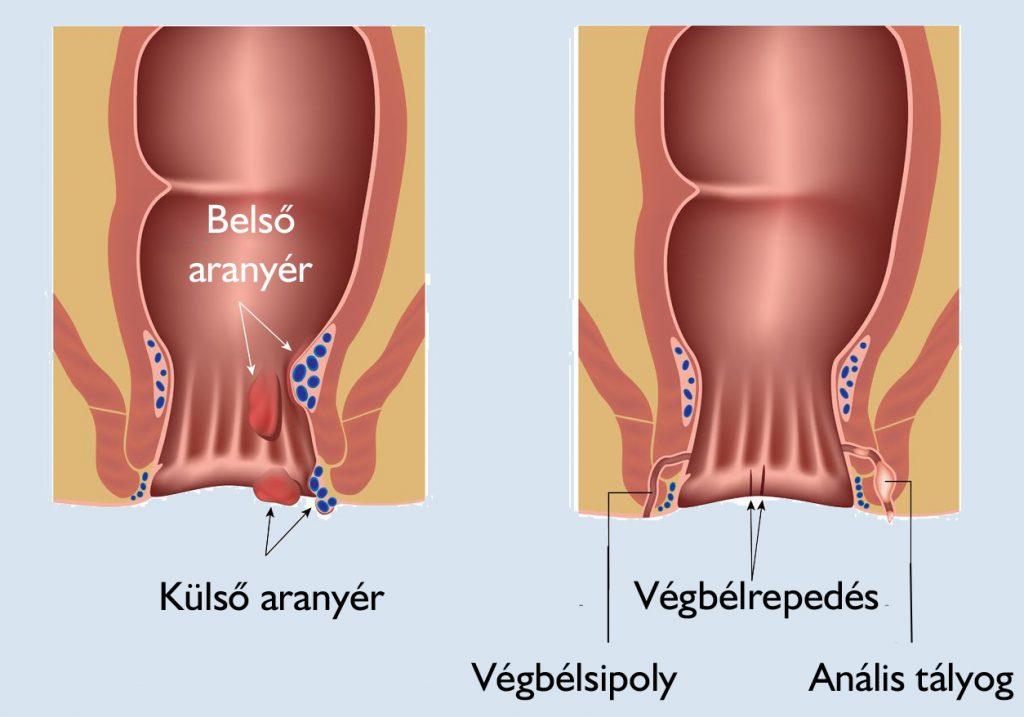 a kismedencei szervek visszérei mely orvos visszérérzékeny