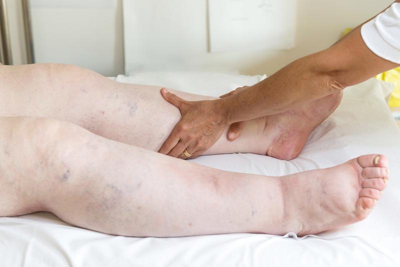 a láb megduzzadhat a visszerektől