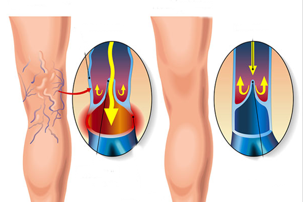 a lábak nagyon fájdalmasak a visszérben milyen módszerek a visszér kezelésére