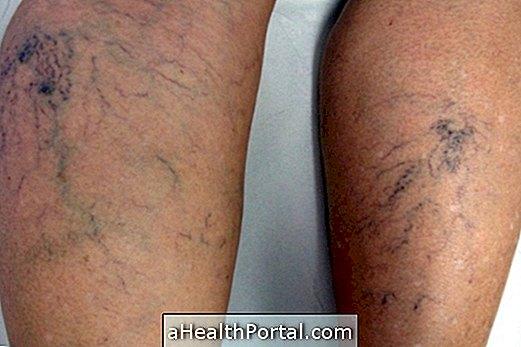 a lábak varikózisának szövődményei