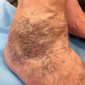 dudorok a lábakon visszér kezeléssel a visszér lézeres kezelésének költsége