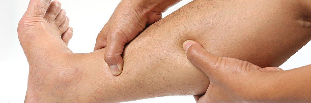 Ha ilyen a lába, nagyobb az esélye a trombózisra
