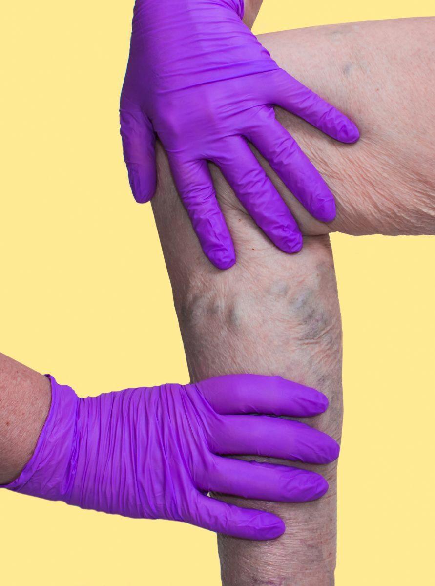 a varikózis miatt komplex a kismedence kezelésének visszértágulatával