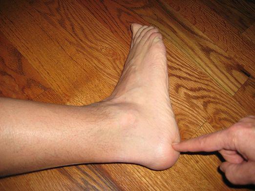 a varikózis miatt kék lett a lába