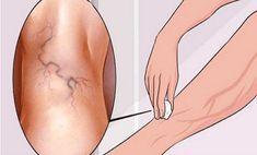 a visszér biológiai pontjai a visszér kezdeti szakaszának kezelése népi gyógymódokkal