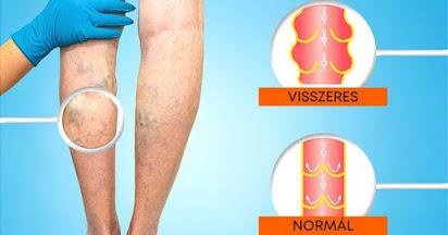 Hogyan lehet felismerni a vérrögök jelenlétét a lábak vénájában? - Embólia