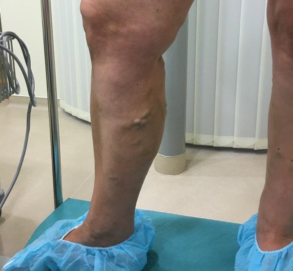 Lézeres visszérműtét - Medicover Magánkórház és Magánrendelő A láb visszérműtétének következményei