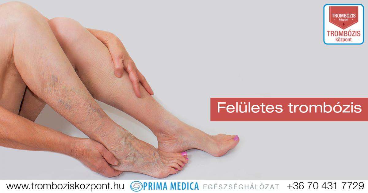 visszerek a lábakon szülés után visszér műtét után