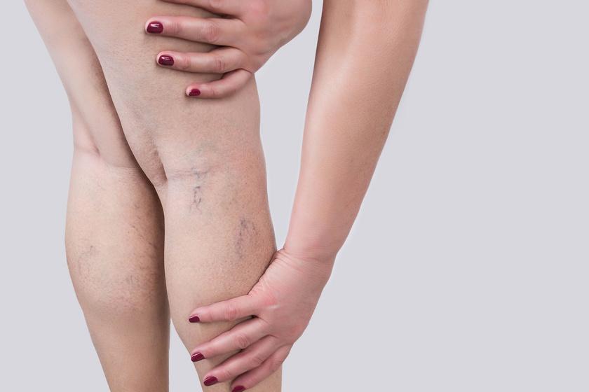 a láb átkötése rugalmas kötéssel a visszér ellen visszér térd tünetei