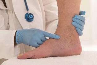 visszér és thrombophlebitis annak kezelése