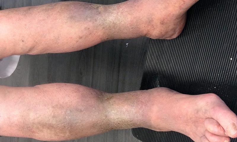 sötét foltok a visszér lábain az alsó végtagok rugalmas kötése visszérrel
