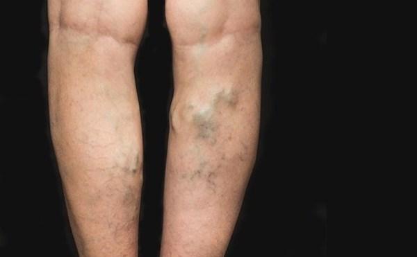 a visszerek lézeres koagulációja a lábakon hogyan lehet visszérrel az asztalnál ülni