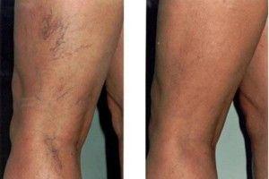 visszér diagnózisa visszér dudorok a lábakon fotó