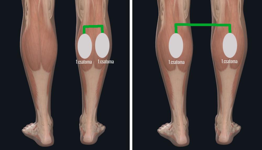 lábápolás műtét után visszér