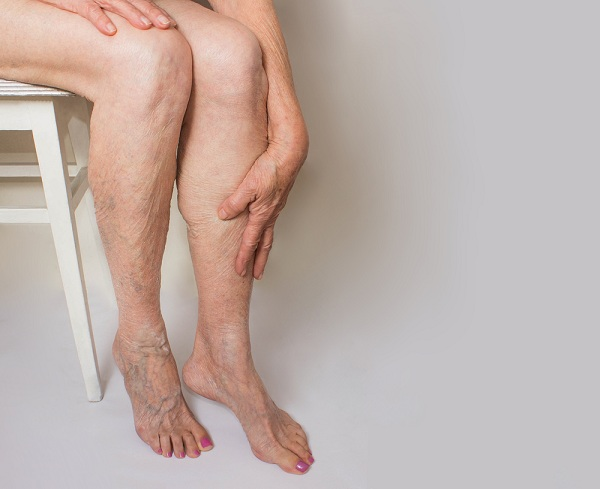 hogyan kezeljük a lábakon lévő visszéreket mézzel gyakorlatok a visszér lábizmainak