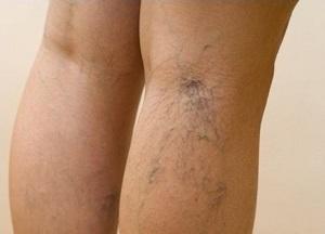 Milta a visszér kezelésében viszkető vénák a lábakon visszérrel