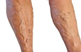 gipsz visszér és vasculitis esetén