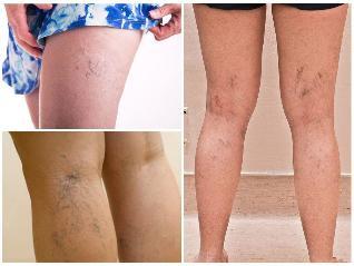 piócák a varikózis miatt a lábakon