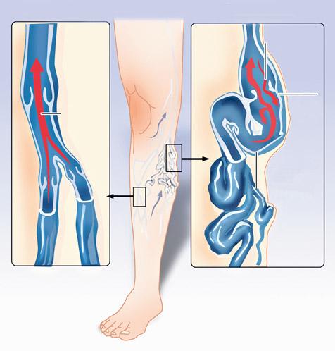 Az ASD-2 gyógyszer hatékonysága a varikózis kezelésében - Ízületi gyulladás