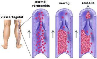 harisnya visszér férfiak számára visszérrel a csípő fájhat