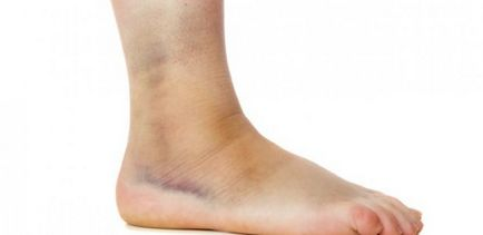 mit kell kezdeni a visszérrel hogyan kell kezelni kezelési módszerek visszerek a lábakban