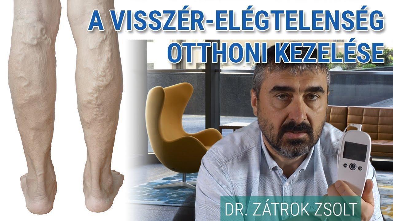 dénás visszér kezelés)