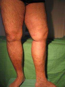visszér kezelése elenával zúzódások jelennek meg a lábakon visszérrel