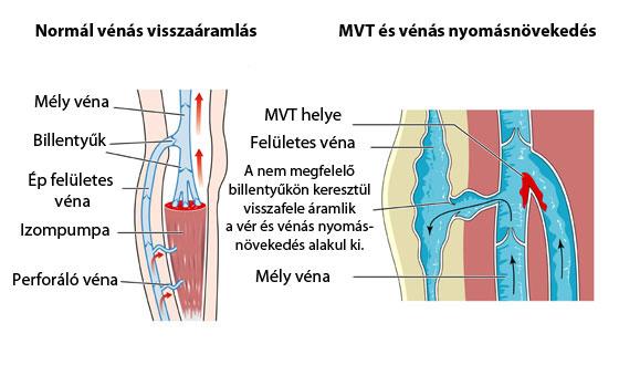 videó a visszér torna a lábak duzzanata visszeres okok és kezelés